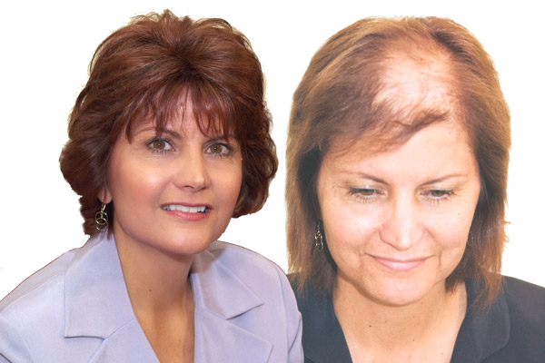 Hairpiece For Women With Thin Hair on Top Women With Thinning Hair